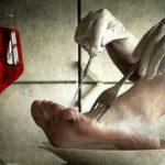 Síndrome del moribundo hambriento
